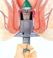 Hemorrhoid Surgery Procedure Image